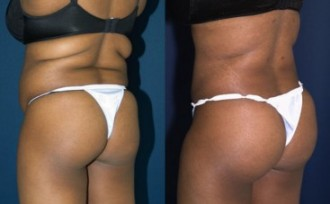 A collage of photos of a patient before and after a Brazilian butt lift procedure.