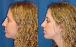 thumbnail side views before and after of a rhinoplasty patient