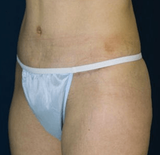 A panty line scar after a Tummy tuck procedure.