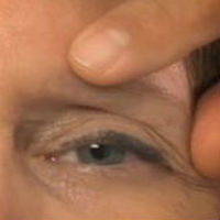 A photo of a patient's left eye, showing the area above the eye that needs to be corrected.