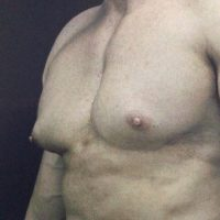 oblique view of a male chest prior to gynecomastia surgery